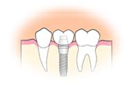 4.人工歯の装着