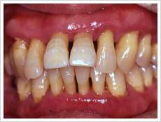 歯周病治療前