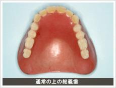 通常の上の総義歯