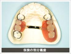 保険の部分義歯